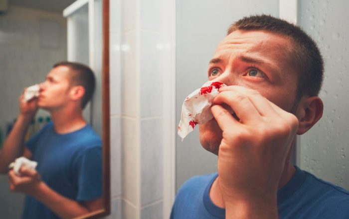 Indiana Sinus 5 Tips To Stop Nosebleeds Should I See An ENT